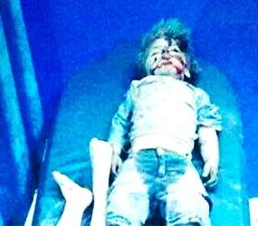 bambino-vittima-siria